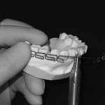 倒れた歯を立て直すワイヤー